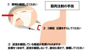 注射 筋肉 コロナ ワクチン 新型コロナワクチンはなぜ筋肉注射なのか?(紙谷聡)